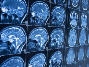 Příznaky Alzheimerovy choroby jsou obvykle neviditelné. Pomoci může umělá inteligence